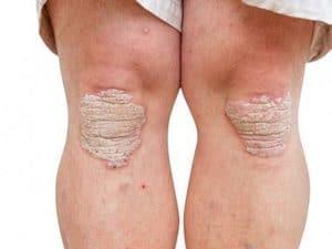 psoriasis en plaque sur les genoux