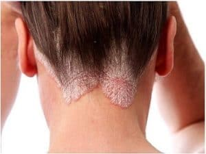 psoriasis du cuir chevelu, traitement shampoing