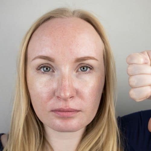acné peau grasse