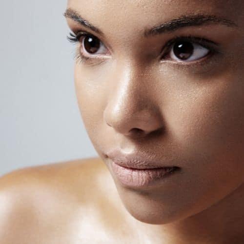 traiter naturellement l'acné des peaux mixtes