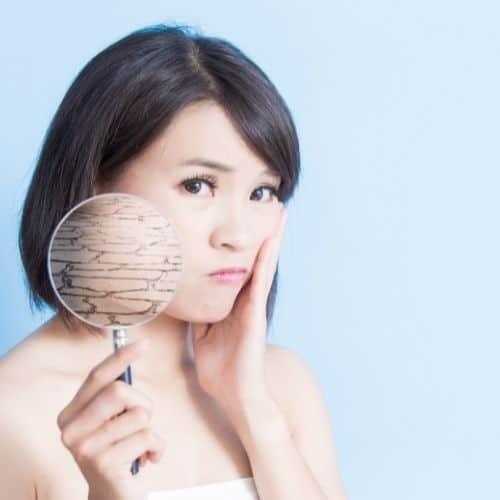 soigner naturellement les imperfections des peaux sèches