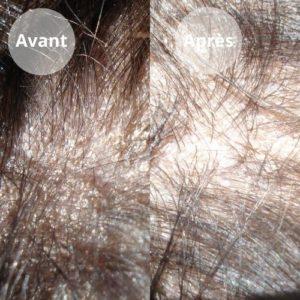 Avant-apres-cheveux