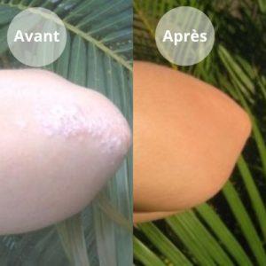 psoriasis avant-après Sylvie