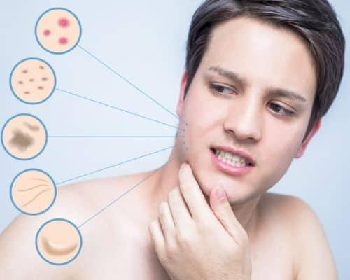 Manifestations de l'acné