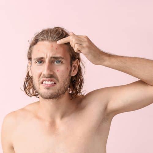 traitement naturel de l'acné
