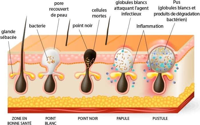 acné causes