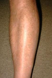 psosriasis jambes après traitement