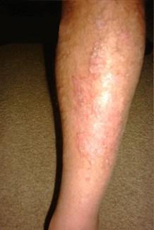 jambes avec psoriasis avant traitement