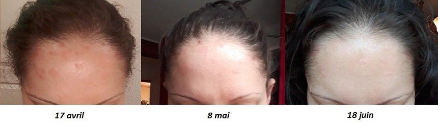 resultats Shampoing Pso Natura psoriasis cuir chevelu