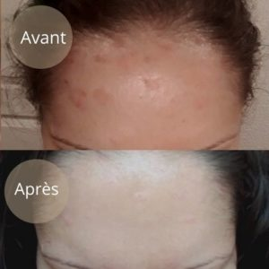 psoriasis-cuir-chevelu-avant-apres
